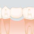 失った歯の再生