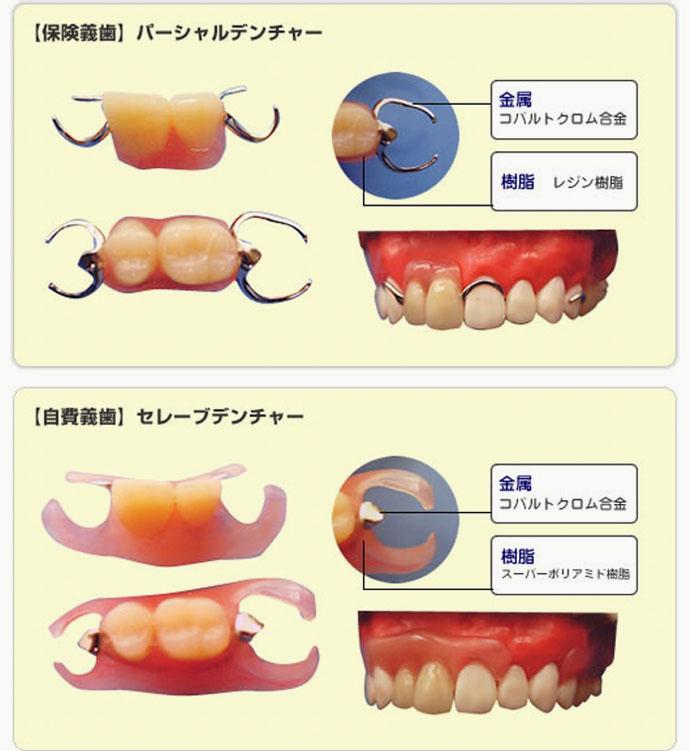 保険義歯と自費義歯の違いの例